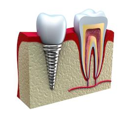Dental Implants By Covina Dentist Dr Huang
