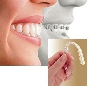 Braces vs Invisalign (clear aligners) by Covina Dentist Michael C Huang
